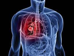 हरेक वर्ष देशमा ५८ हजार क्यान्सर रोगी थपिँदै