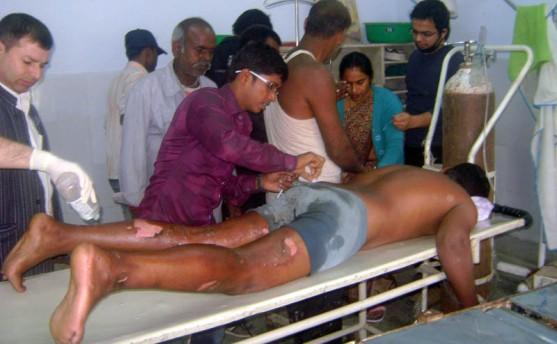 मोर्चाका कार्यकर्ताले युवकको शरीरमा पेट्रोल छर्की आगो लगाए