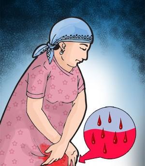 गर्भकालीन रक्तस्राव